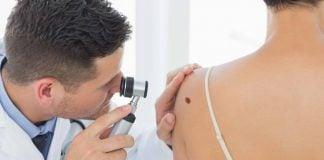 controles-gratis-cancer-piel-vicente-lopez