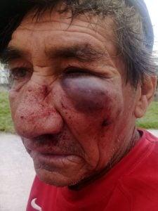abuelo-pelea-vecinos-garrote-policia